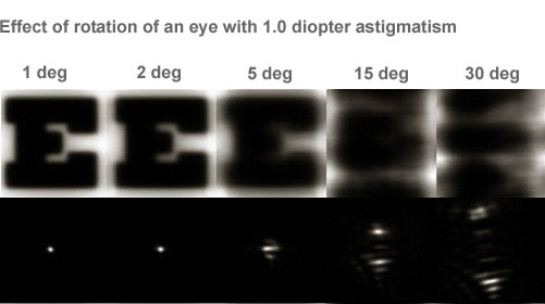 Rotation of the eye prior to treatment degrades image.